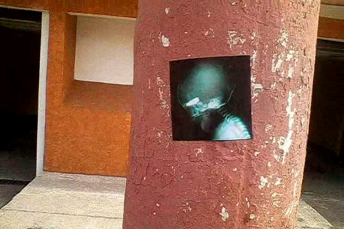 Sticker art from a Syrian x ray of a fetus shot in the head